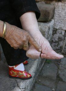 voetbinden-1